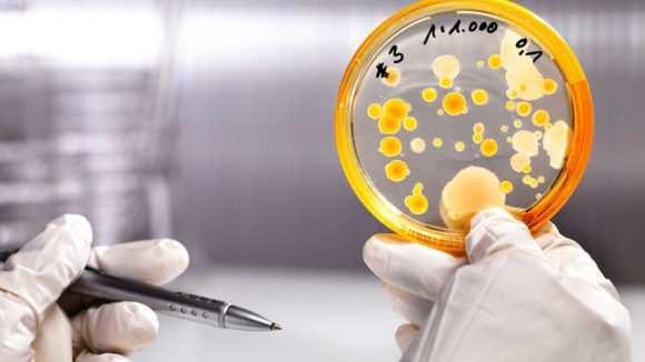 Расшифровка анализа на дисбактериоз