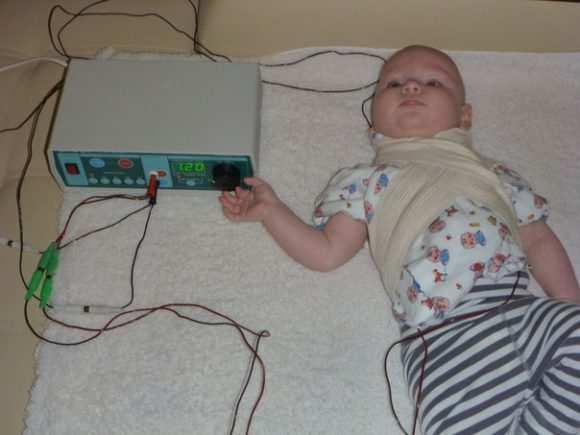 Электрофорез для грудничка в домашних условиях