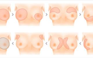 Как и через сколько можно восстановить и подтянуть грудь после кормления, вернуть упругость если обвисла