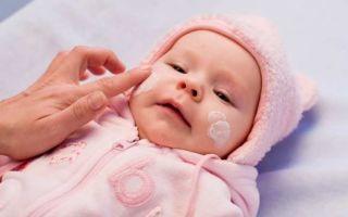 Причины появления и способы лечения потницы на лице у грудничка