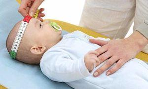 Что делать, если у грудного ребенка неровная голова, как исправить