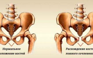 Симптомы и сроки расхождения костей таза при беременности и что делать