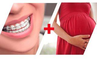 Можно ли при беременности носить и ставить брекеты, осложнения и советы