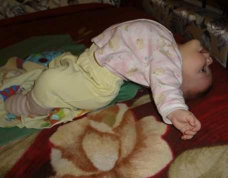 у ребенка выгнута спина