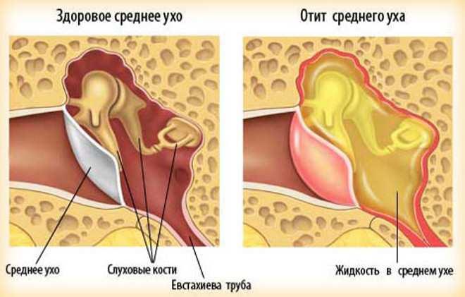 Отит среднего уха