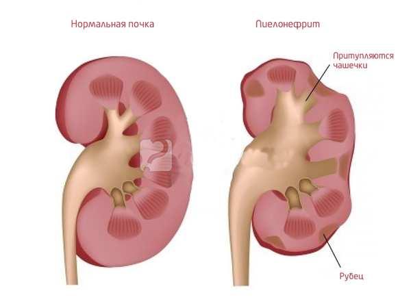 пиелонефрита у грудничков