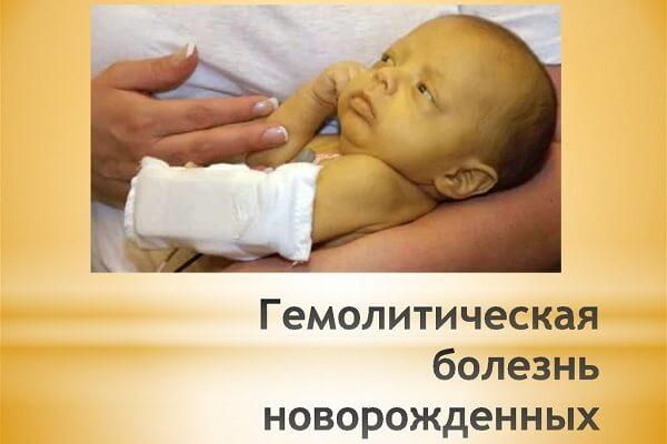 вид малыша при геморрагической болезни