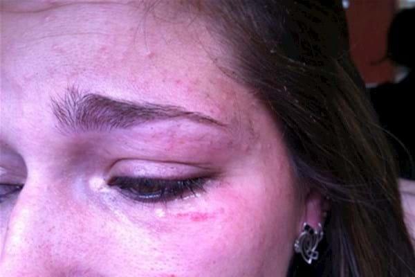 порез под глазом у девушки