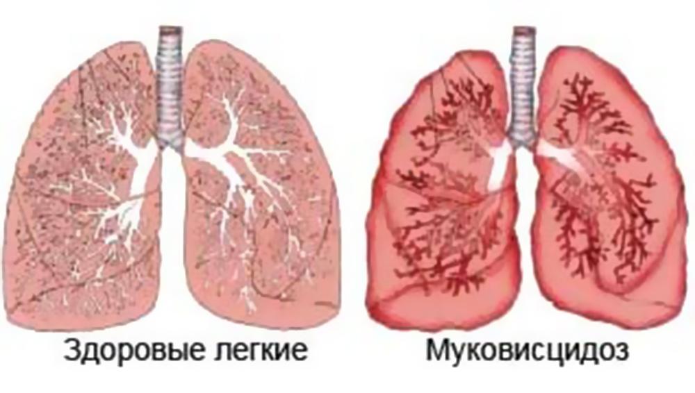 здоровые и больные легкие при Муковисцидозе