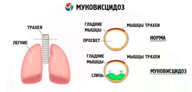 схема о Муковисцидозе
