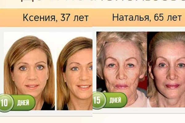 до и после использования ионного массажера для лица Revoskin