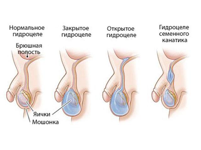 схема гидроцеле