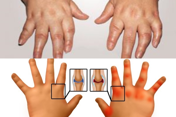 руки при артрите у детей