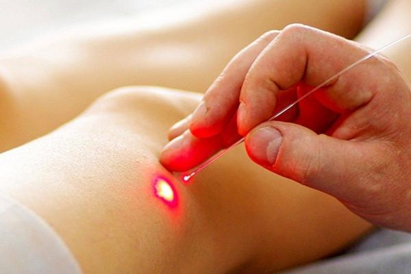 процесс лазерной терапии