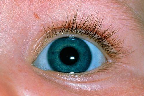 У новорожденного голубые белки глаз