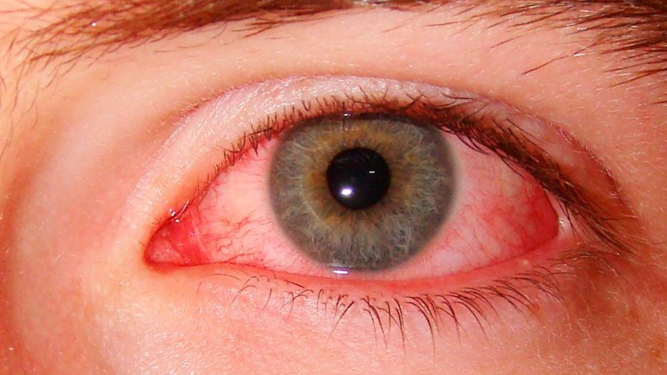 У ребенка красные белки глаз