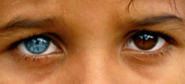 цет глаз у ребенка