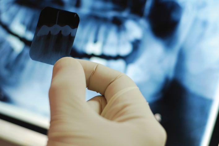лечение зубов при гв