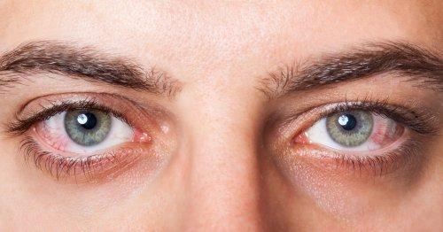 воспаление на глазах