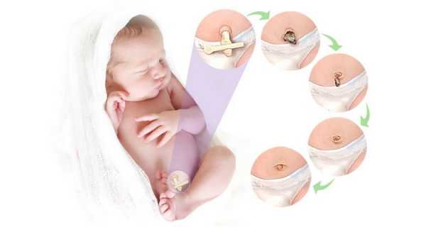 пупок малыша
