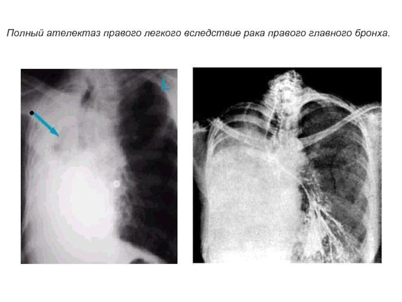Причины агенезии легкого у плода и степени зрелости органов дыхания по неделям