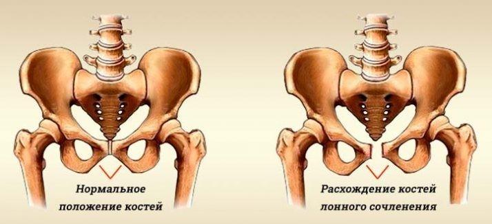 расхождение костей таза при беременности